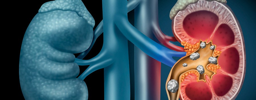 Litiaza renala beneficiază de tratament modern